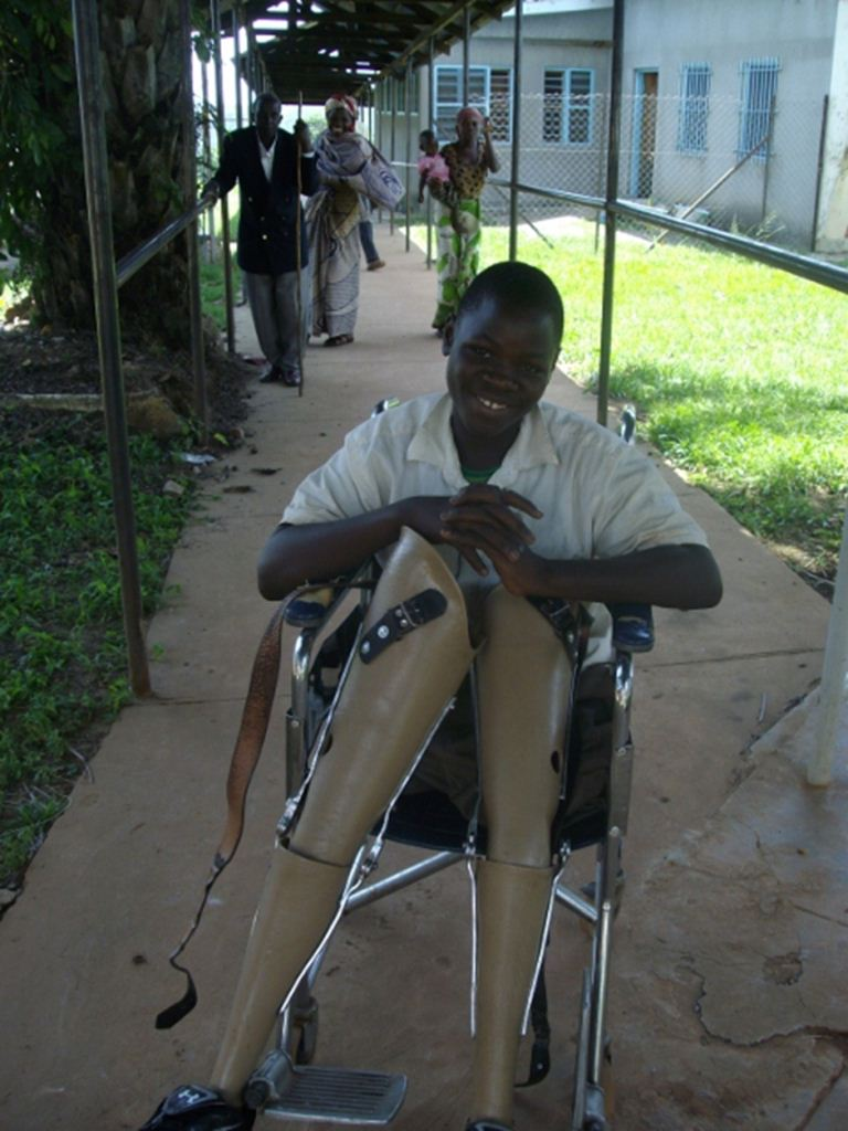 Roger, taking his limbs to be repaired. He lost both legs when he fell into a charcoal burner as a small child.