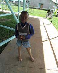 Stephen congenital defect bilateral amputee child amputee ELoH Tanzania