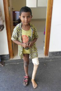 Vivaan, ELoH, Elizabeth's Legacy of Hope, amputees, disability, prosthetic, charity, india, andhra pradesh, children, happy