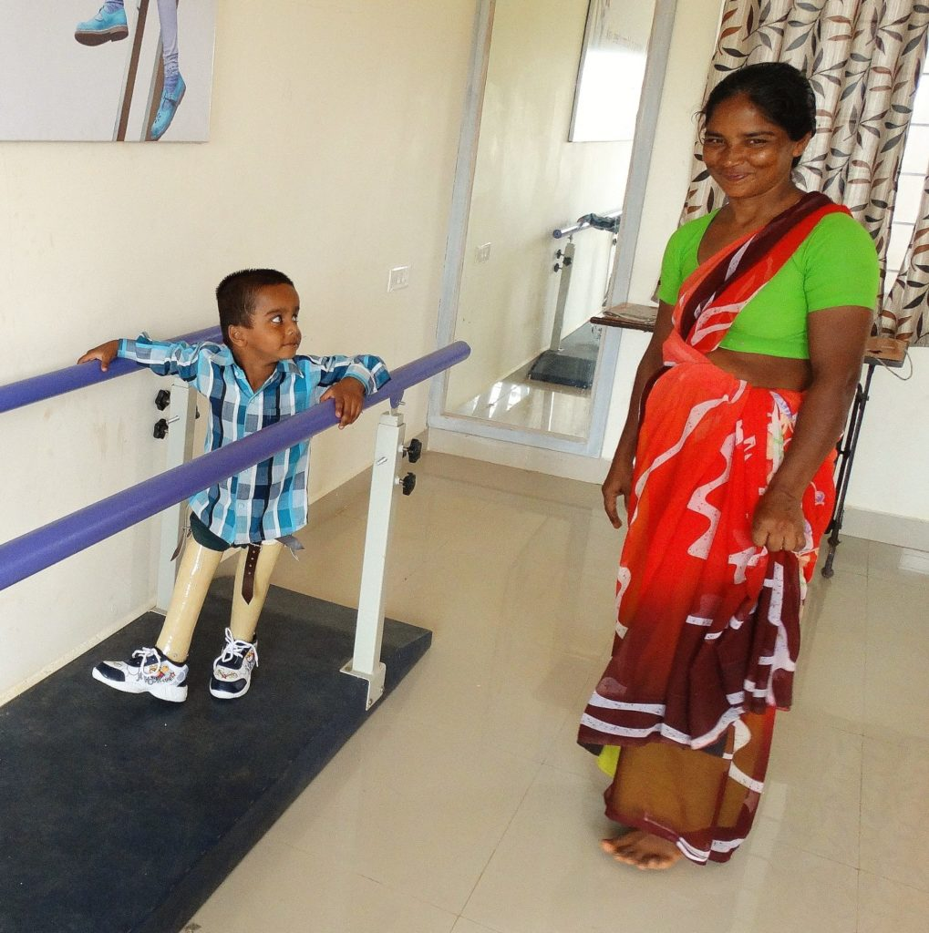 Amputee project, ELoH, child amputee, India, Andhra Pradesh, prosthetic